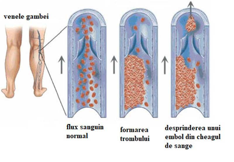 dieta pentru trombofilie